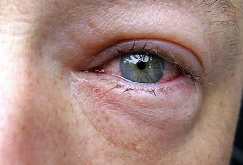 صور - علاج احمرار وانتفاخ العين بطريقة طبيعية