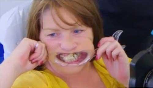 صور - امرأة تستخدم الغراء من اجل لزق اسنانها المتساقطة حتى لا تذهب الى الطبيب !!!