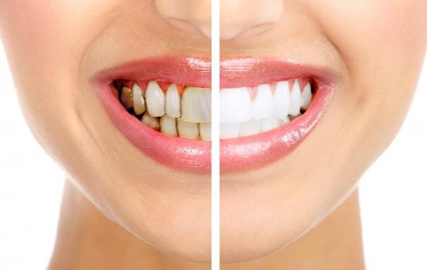 صور - 7 طرق طبيعية تساعدك فى ازالة الجير من الاسنان