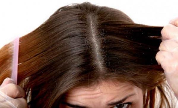 صور - افضل 10 طرق تساعد فى علاج قشرة الشعر في المنزل